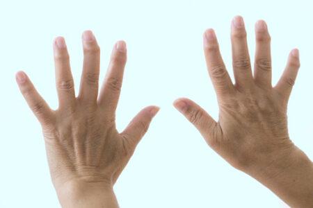 指先の痛みと変形(へバーデン結節)