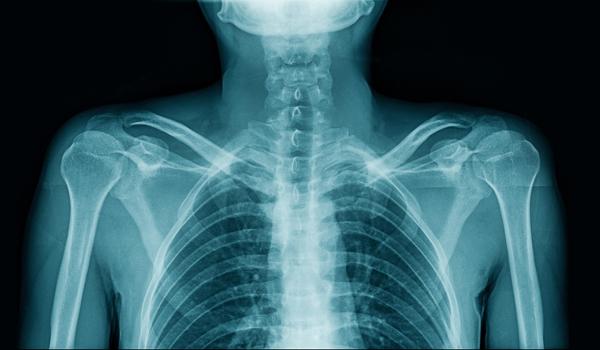 骨折 あばら 肋骨骨折 一般社団法人 日本骨折治療学会